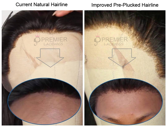 Improved Pre-Plucked Hairline